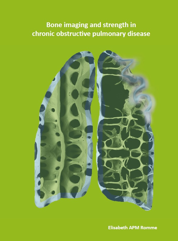 Romme - Bone imaging and strength in chronic obstructive pulmonary disease
