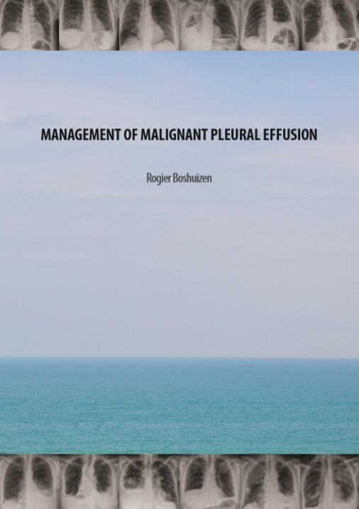 Boshuizen - Management of malignant pleural effusion