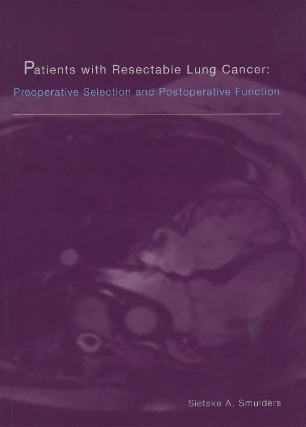 Smulders - Patients with Resectable Lung Cancer  Preoperative selection and postoperative function